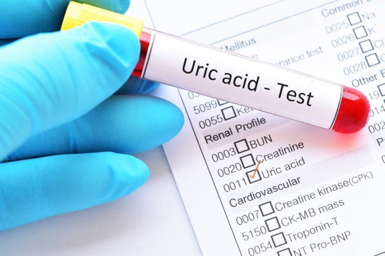 Axit uric là gì?