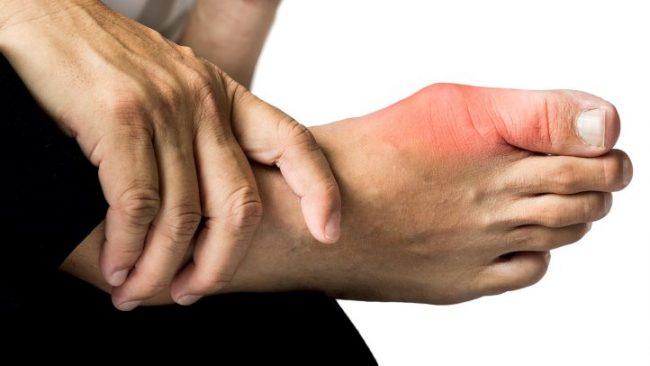 Bạn đã biết nguyên nhân bệnh gout phổ biến chưa?